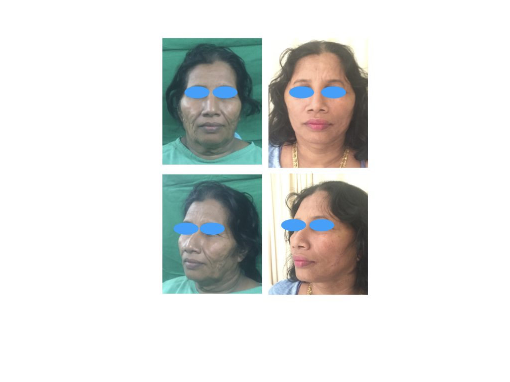 Pre and Post operative pictures of surgical face lift.. Which is an age reversing surgical procedure gives you youthful face agin in your life ..